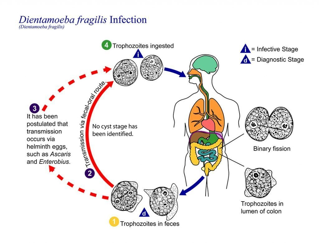 dientamoeba fragilis infection route natural treatment option gut health byron bay australian naturopath