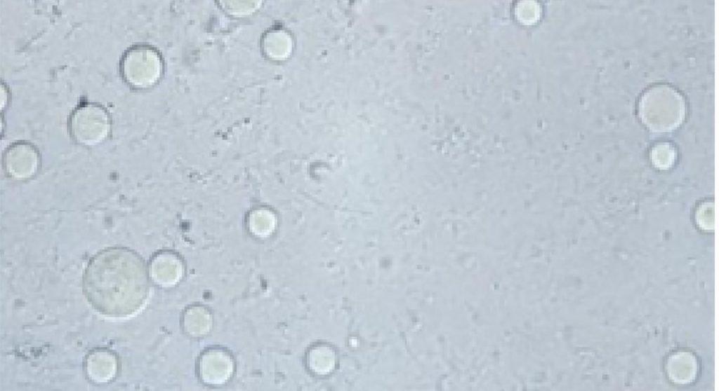blastocystis hominis gut testing option byron bay herbalist australian naturopath
